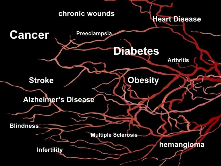 Angiogenesis in Disease